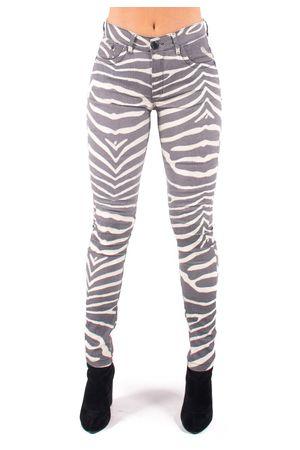 calca-jeans-bana-bana-zebra--2-